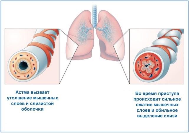 Проявление приступа астмы
